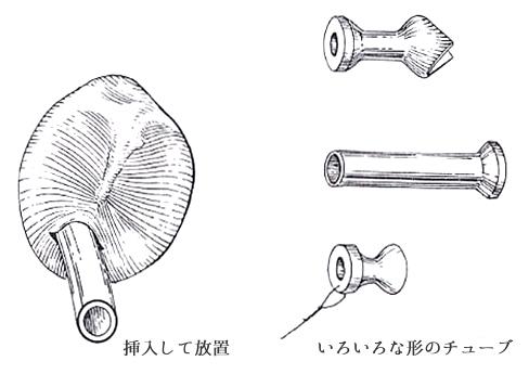 せのお耳鼻科クリニック:滲出性中耳炎の治療法